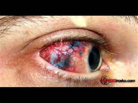 man deformed eyeball tattoo goes wrong youtube