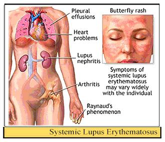 sle of use image gallery lupus erythematosus