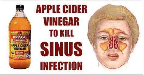Sinus Efection Detox Symtom by How To Kill Sinus Infection Within Minutes With Apple