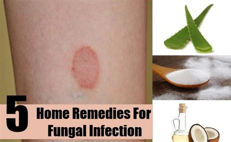 skin yeast infection home remedy remedies for fungal skin conditions