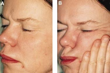 coverage for fine line on forehead sleeping lines wrinkles caused by sleeping futurederm