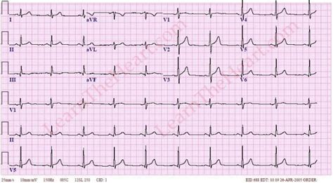 Type B Rvh - electrocardiogram iv 심전도 iv qrs deviation을 일으키는 질병
