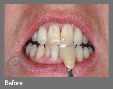 tooth whitening  castle square clinic caernarfon