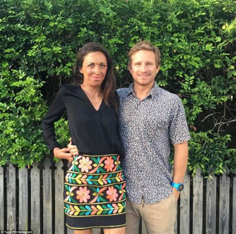 60 day fiance where are the now turia pitt reveals how she told fiance she was pregnant