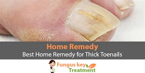 fungus key treatment