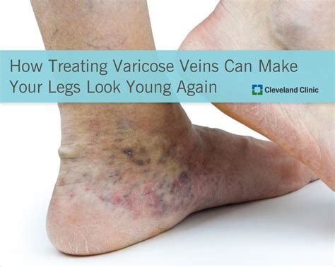 How To Detox For Swelling Ankles by 8 Best Images About Varicose Veins In On