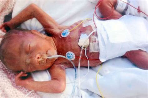 born prematurely meaning premature baby who weighed less than two pounds beat the