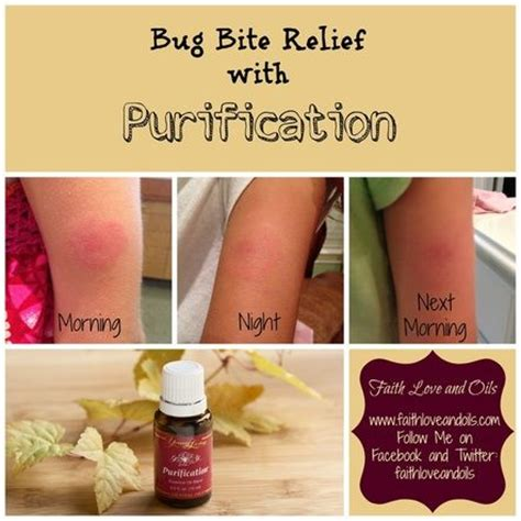Insect Bites With Essential bug bite relief with living s purification