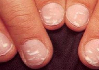 white fingernail beds what do your nails say about your health faculty of