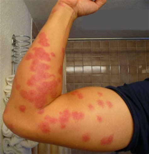 symptoms of bed bugs bed bug bite symptoms pictures gallery bed bugs nyc
