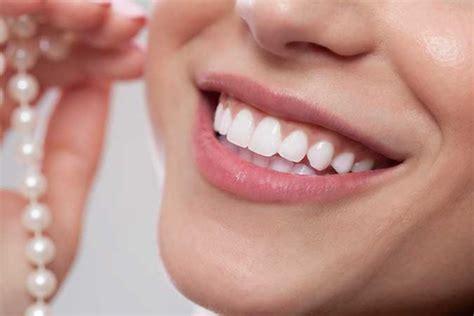 teeth whitening dublin ca dental bleaching treatments