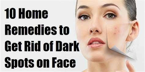 10 Ways To Get Rid Of Freckles by How Can I Get Rid Of My Acne Scars How To Fade Spots