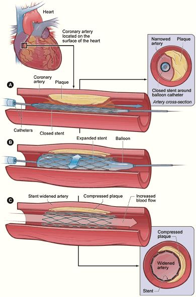 coronary angioplasty with or without stent implantation restenosis wikipedia