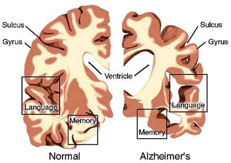 preventing alzheimer s alzheimer s factors prevention steps and foods that prevent or alzheimer s recipes for alzheimer s prevention diet essential spices and herbs books alzheimer s disease prevention seven sins listed as risks