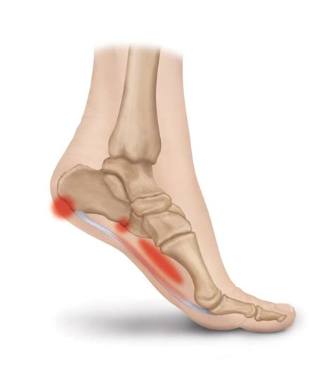 Planters Faceitis by Plantar Fascia Ligament Conditions Heel That