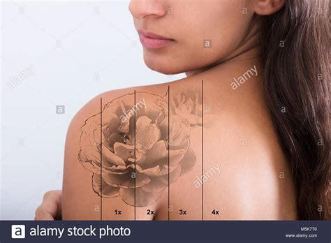 white tattoo removal removal laser stock photos removal laser