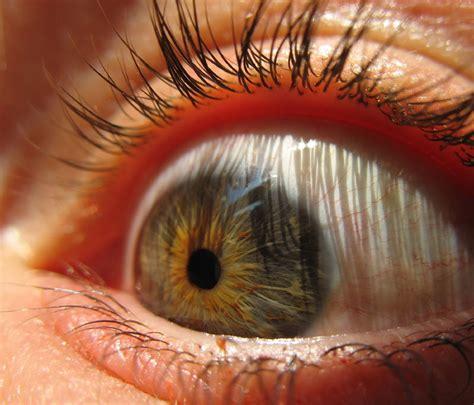 imagenes de ojos normales pupilas primeros y segundos auxilios