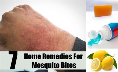 7 best home remedies for mosquito bites