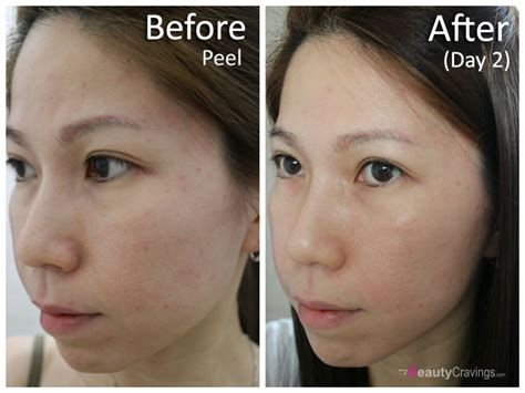 10 glycolic acid peel side effects glycolic acid before and after www pixshark