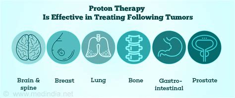 Proton Therapy Cancer Treatment by Proton Beam Therapy For Cancer Treatment