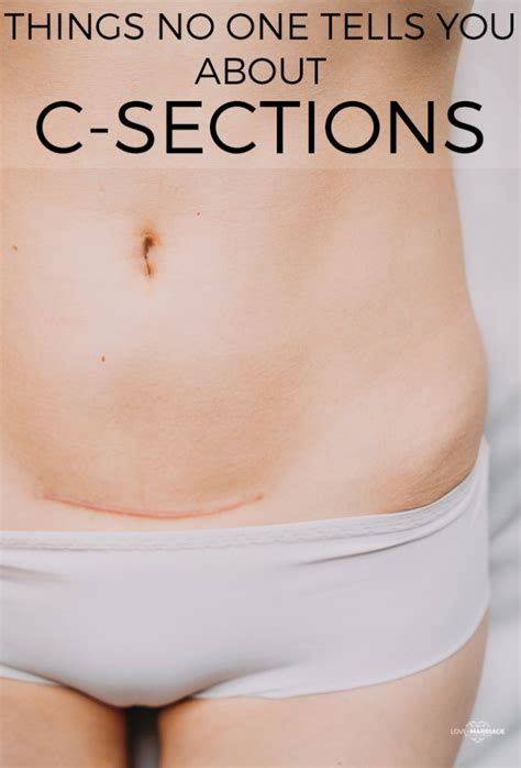 still bleeding 2 weeks after c section 11 things no one tells you about c sections love and