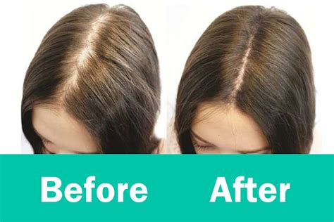 can lost hair be grown back nicehair natural hair how to regrow hairs in thinning areas