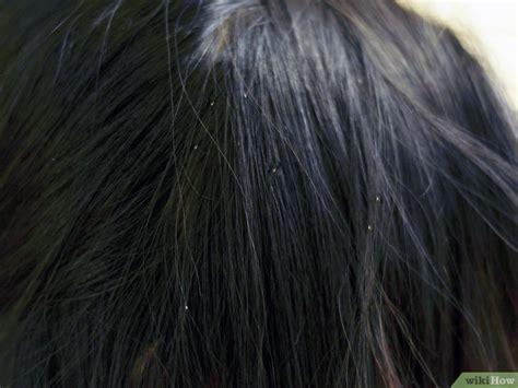lice detection ultraviolet magnifier light c 243 mo reconocer los piojos 7 pasos con fotos wikihow