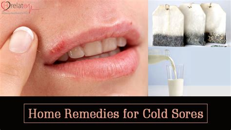 homoeopathic remedies for cold sores