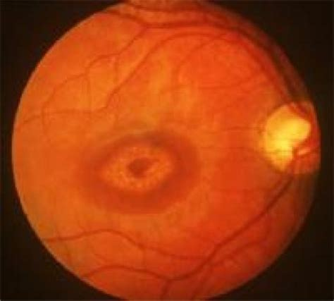 pattern dystrophy differential diagnosis retina studyblue