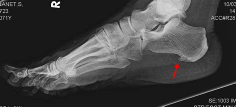 Planters Spur by Heel Spurs Or Plantar Fasciitis Dr Nick S Running