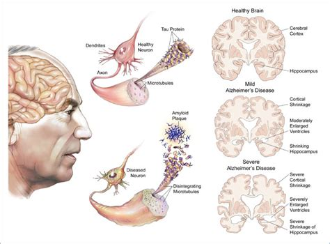 alzheimer s alzheimer s disease ad causes and treatment the