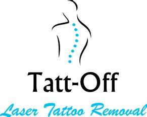 tattoff tattoo removal tattoff removal service for surrey hshire