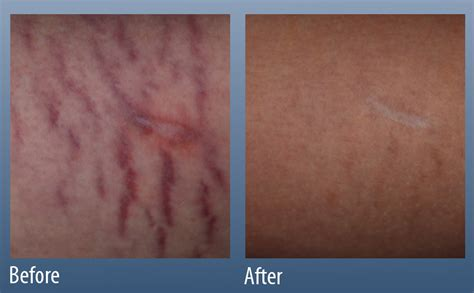 red stretch marks main line center ardmore pa