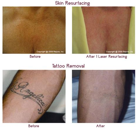 laser tattoo removal risks laser removal cancer risk removal