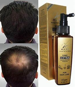 Kaminomoto Hair Growth For Beard hair loss tonic fast grow regrowth treatment in 60 days ebay