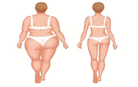 pressione alta dieta alimentare sintomi della pressione alta arteriosa oculare o nelle