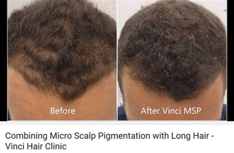 pics of scalp micropigmentation on people with long hair 35 best scalp micro pigmentation woman images on pinterest