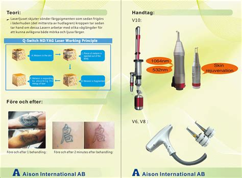 diode laser tattoo removal removal laser v6 aison international ab