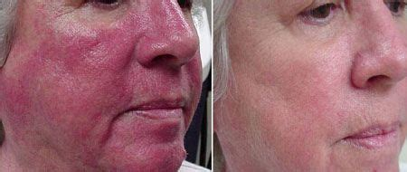 light therapy rosacea how to use light therapy to heal rosacea naturally
