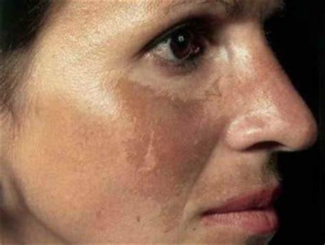 Obat Alami Kulit Terbakar Matahari tips memulihkan kulit yang terbakar sinar matahari secara