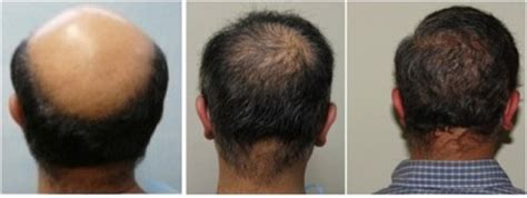 best hairtransplant in the world best hair transplant in the world what to look for