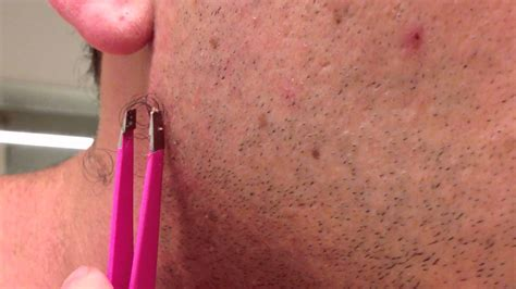 pictures of in grown hair in chin the longest grossest ingrown hair in history youtube