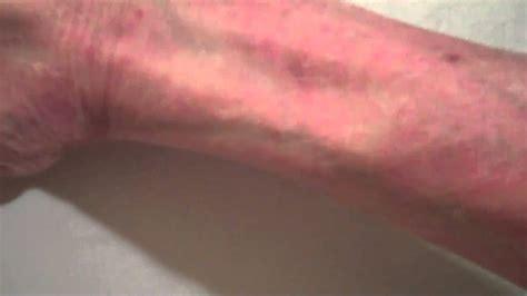 Detox Rash On Arms rash on arms and legs 1 nov 2010 mp4