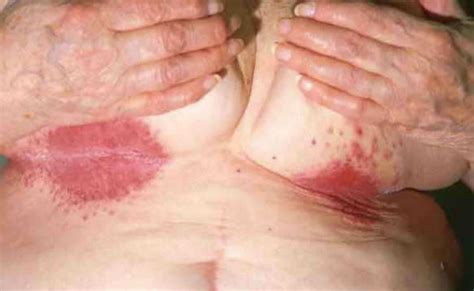 tattoo yeast infection rash under breast pictures get rid of sore heat rash from