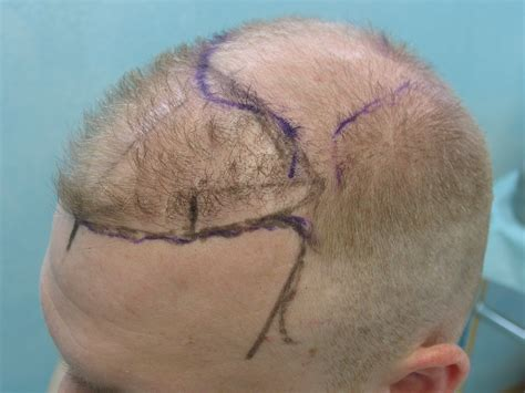 fue haircuts fue hair transplant in ludhiana at affordable cost fchtc
