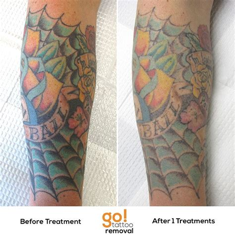 large tattoo removal after 1 laser removal treatment we re seeing great