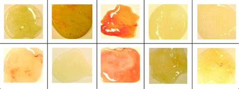 color of sputum reproducibility of the sputum color evaluation depends on