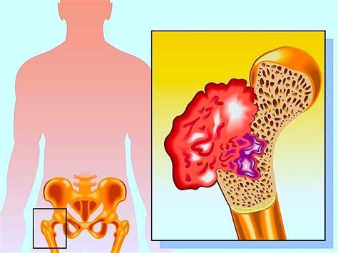 dolore testa sinistra 10 cause di dolore all anca destra o sinistra