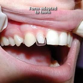 dental bonding at home bonding alpha dental burnaby bc