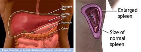 How To Get Rid Of Gas Pains After Section by How To Get Rid Of Gas After Gallbladder Removal